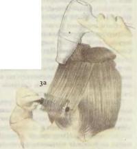 3а. Завивка волос наружу