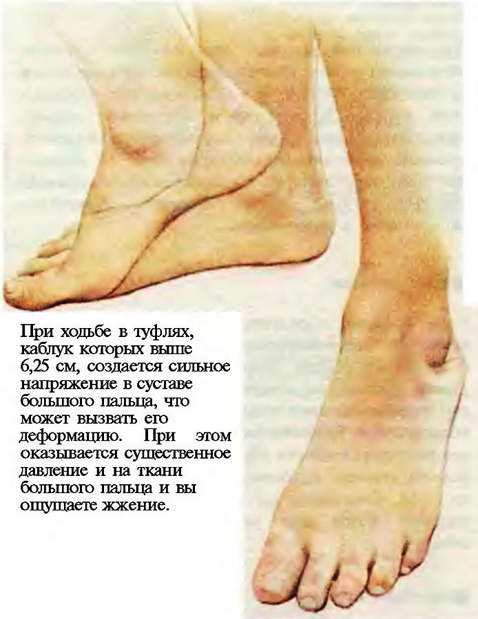 Ходьба в туфлях