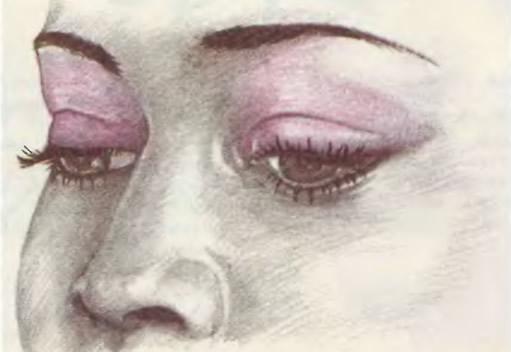 Как сделать глаза менее выпуклыми