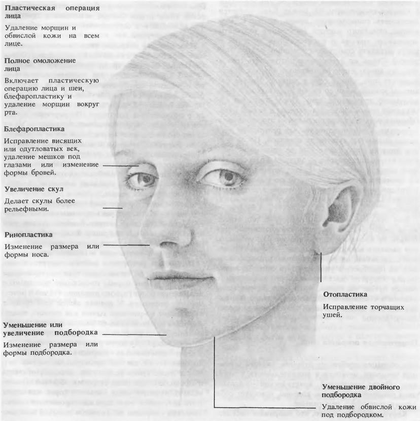 Пластическая операция лица
